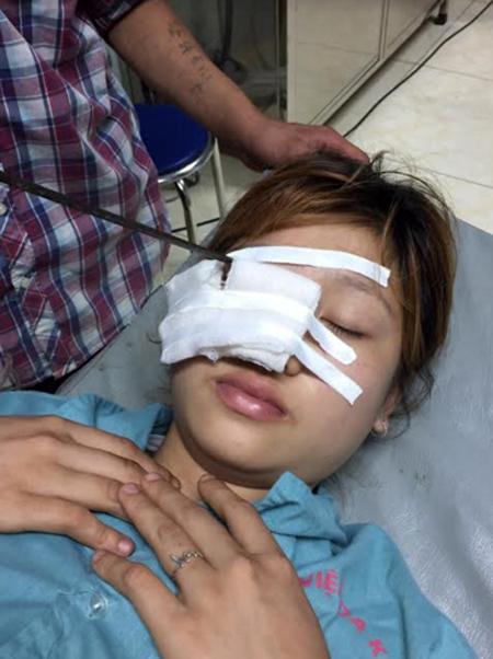 Bệnh nhân Triệu Thị Ngọc bị thanh sắt đâm xuyên qua 1/3 ngoài mi trên mắt phải.