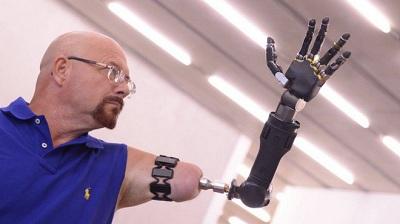 Cánh tay robot này hoàn toàn khác với những cánh tay robot thông thường bởi nó có thể điều khiển được bằng trí não.