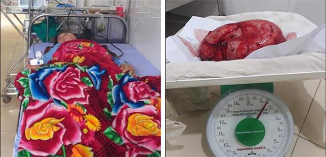 Bệnh nhân Lý Thị Tiếc và khối u nang hỗn hợp buồng trứng phải dính ruột thừa nặng 1,6kg sau khi cắt bỏ.